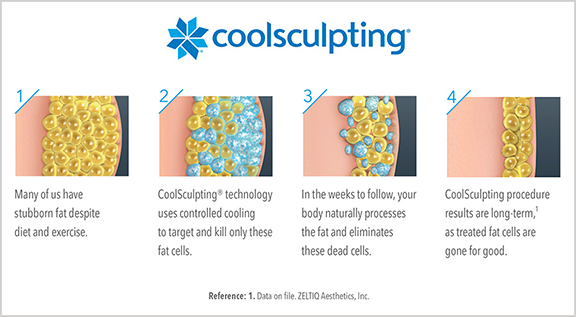 CoolSculpting Fat Illustration