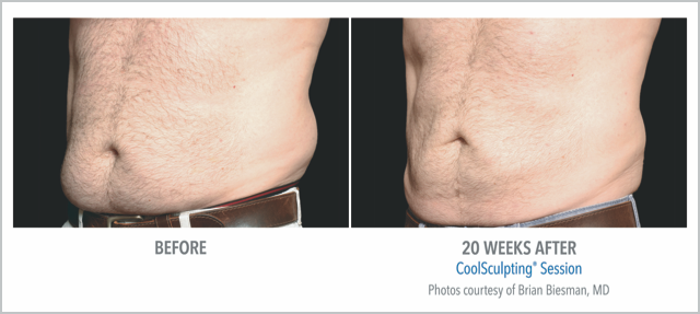 Before/After CoolSculpting 20 Weeks