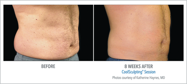 Before/After CoolSculpting 8 Weeks