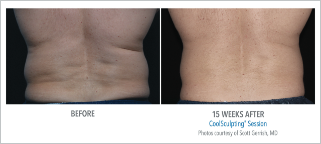 Before/After CoolSculpting 15 Weeks