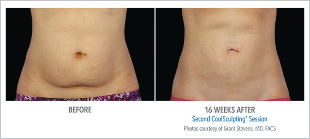 Before/After CoolSculpting 16 Weeks