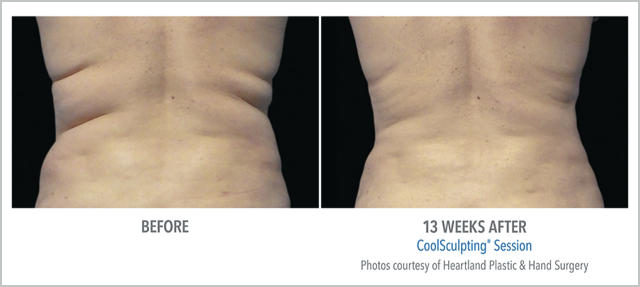 Before/After CoolSculpting 13 Weeks