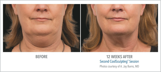 Before/After CoolSculpting 12 Weeks