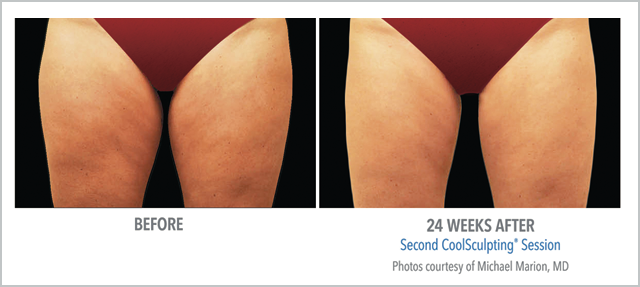 Before/After CoolSculpting 24 Weeks